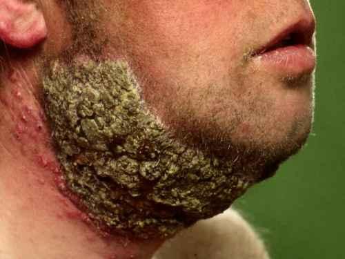 Infektoitunut kaulaparta