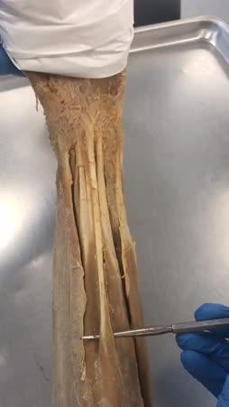 palmaris longus.